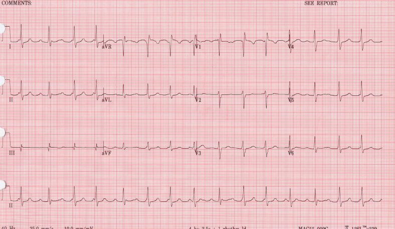 Cristal Atrial Tachycardia | Busy Being Born Solutions, LLC